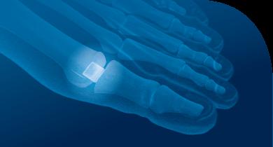 Hallux Limitus Cartiva Implant